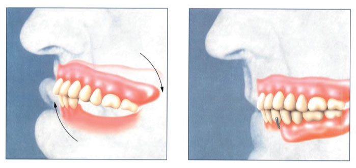 Partial denture graphic